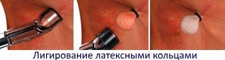 Легирование латексными кольцами