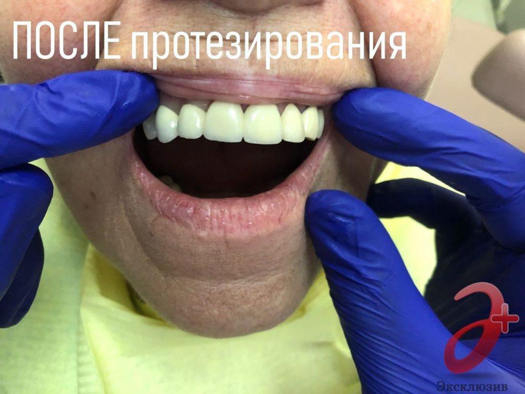 Случай 2 - ПОСЛЕ протезирования металлокерамикой