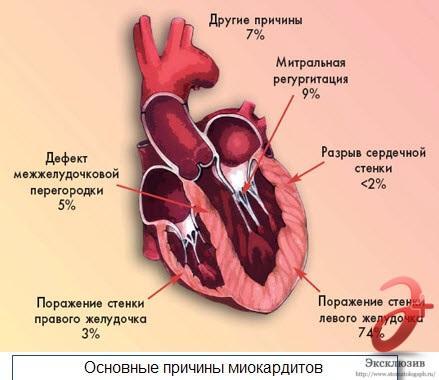 Основные причины миокардита