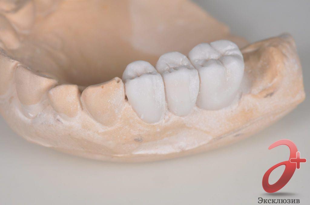 Мост на зубы - макет