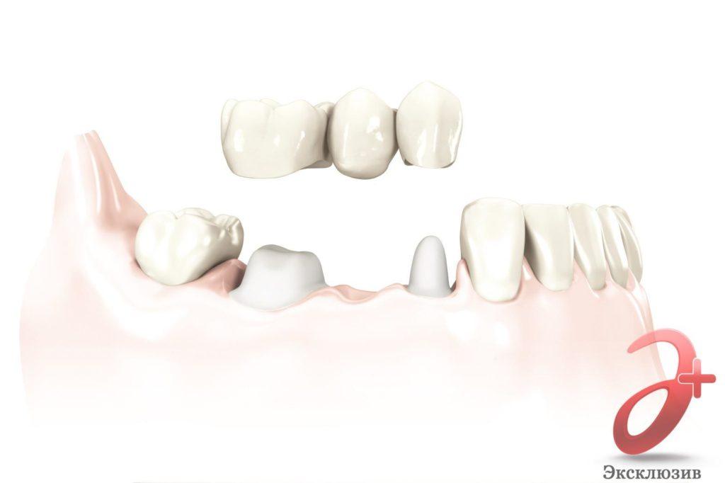 Зубной мост - 3D модель