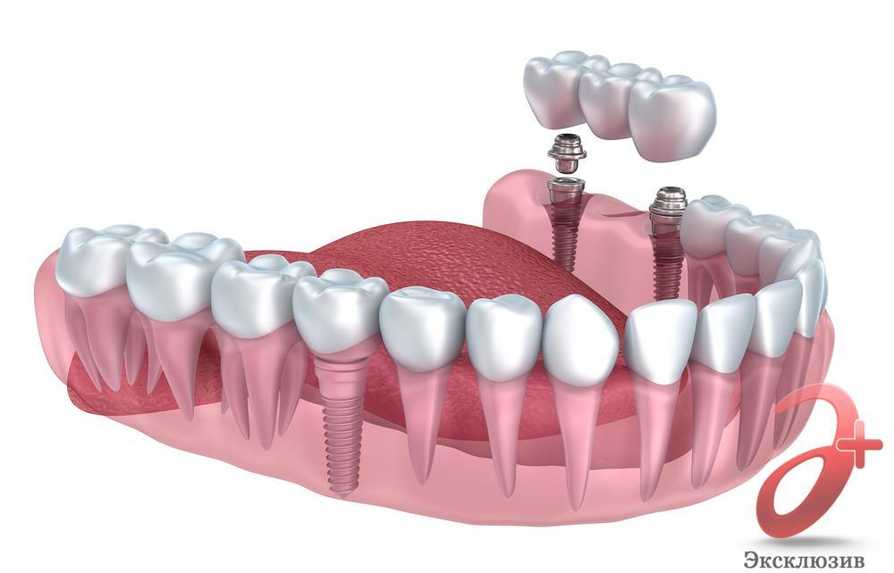 Мост на зуб - установка на импланты