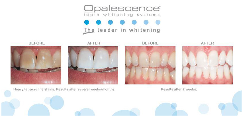 Отбеливание зубов по системе OPALESCENCE EXTRA BOOST ДО И ПОСЛЕ