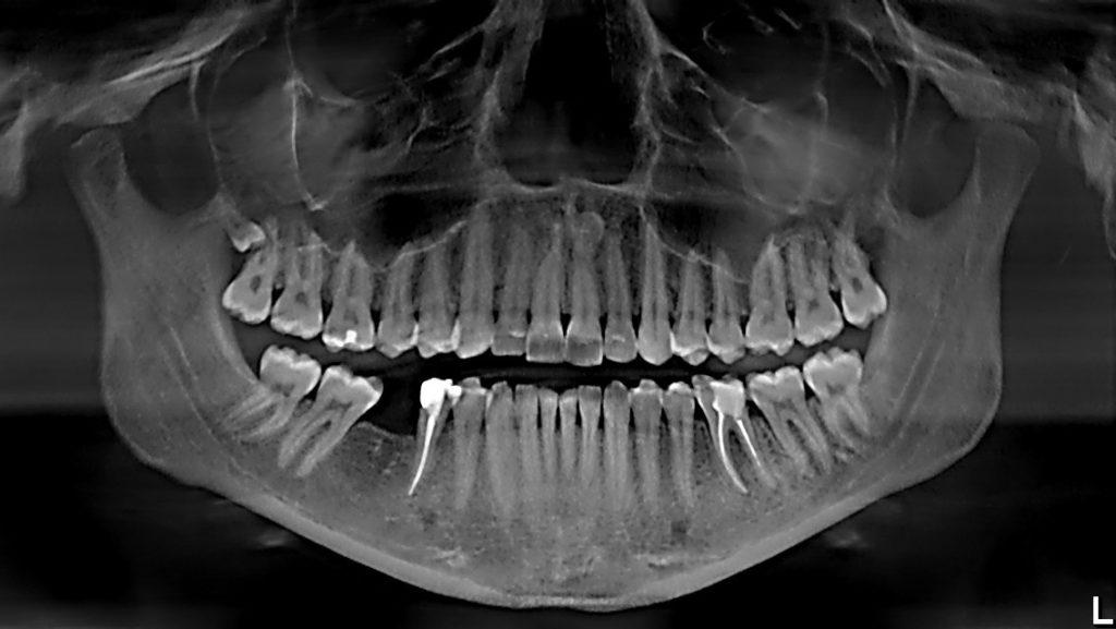 панорамный снимок зубных рядов