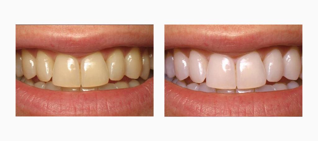Результат отбеливания зубов в эстетической стоматологии