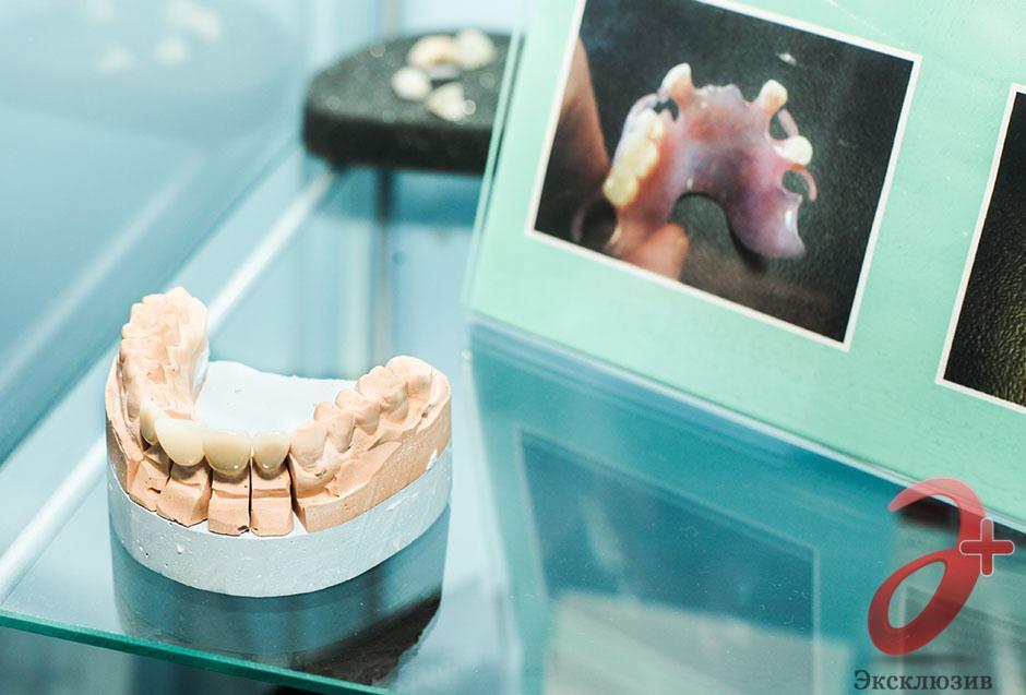Макет для изготовления зубного протеза по личному слепку