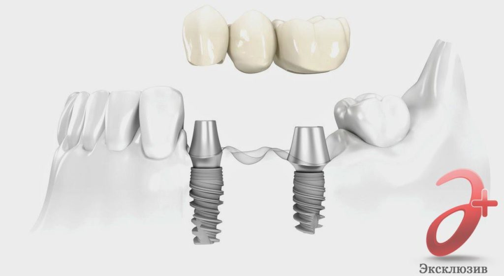 Мостовидное протезирование при частичном отсутсвии зубов