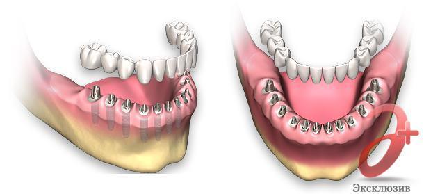 Протезирование при отсутствии зубов