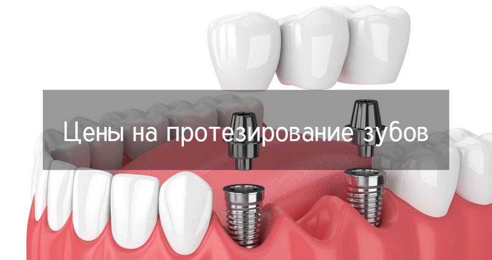 Протезирование зубов в Санкт-Петербурге и цены на него