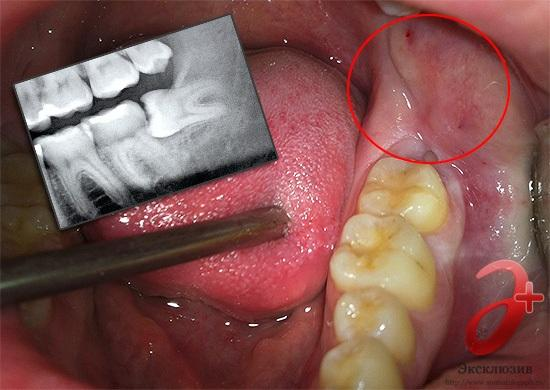 Растет зуб мудрости и болит десна фото