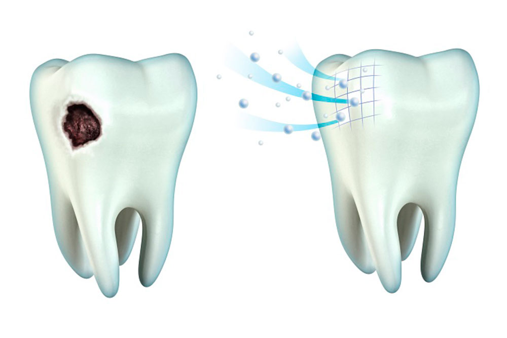 Защита зубов фтором