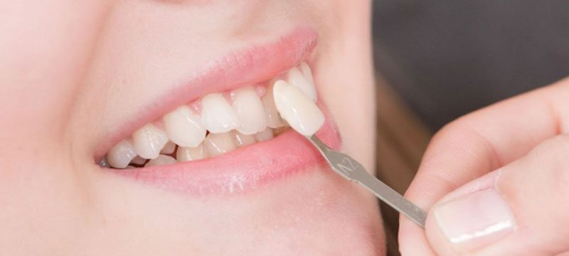 Прмиерка композитного винира на 1 зуб