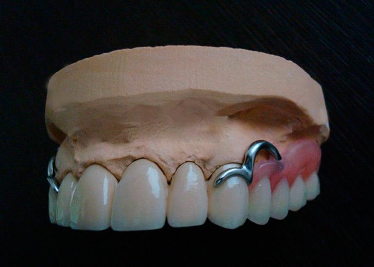 Бюгельный протез на кламмерах на верхнюю челюсть