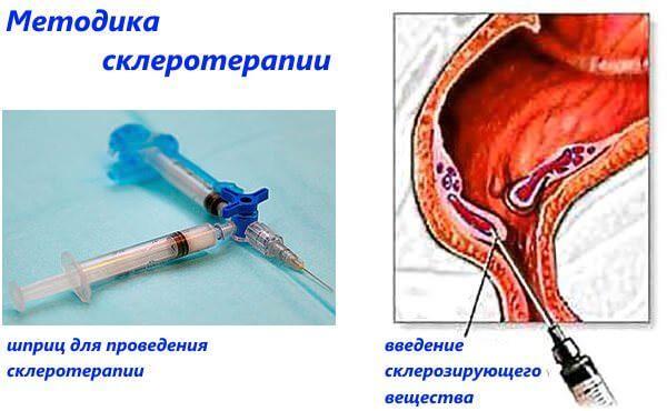 Склеротерапия геморроя
