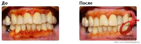 плазмолифтинг в стоматологии - результаты