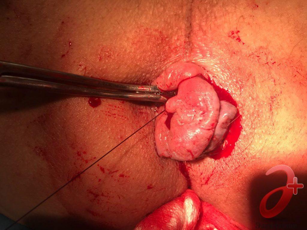 Случай №2 - Прошивание и перевязка «ножки» геморроидального узла