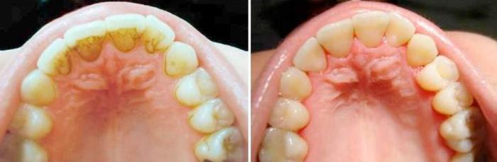 Зубы до и после ультразвуковой чистки