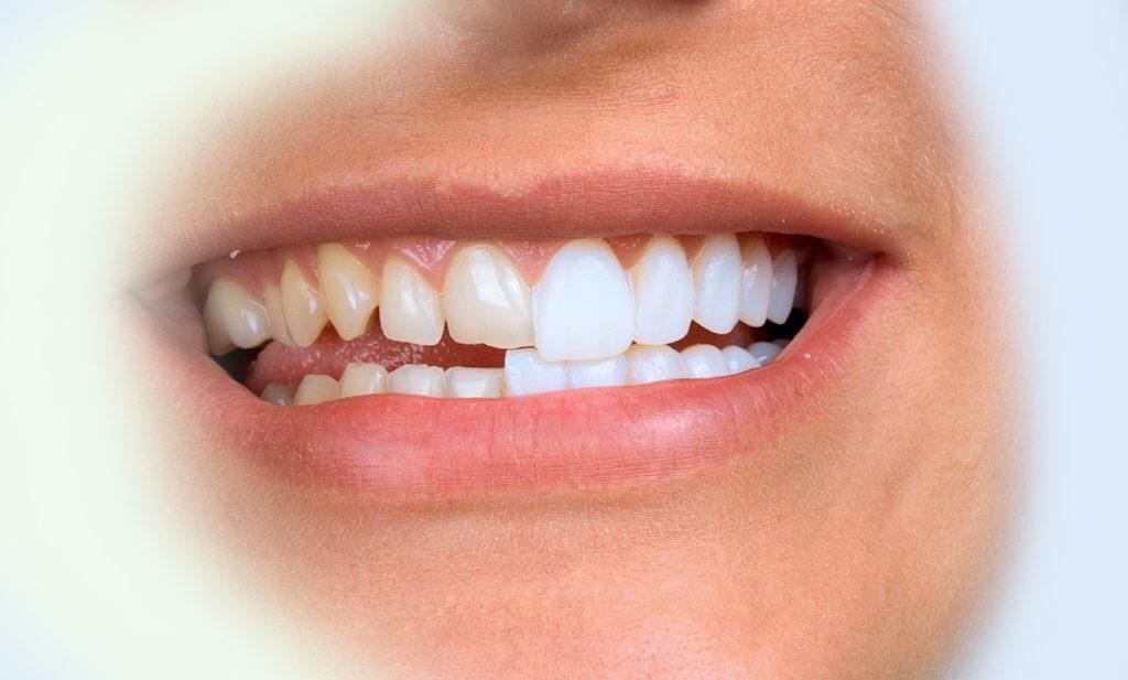 Керамический винир E-max как выглядит во рту