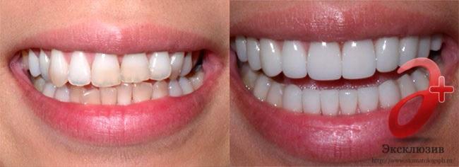 Виниры на зубы до и после