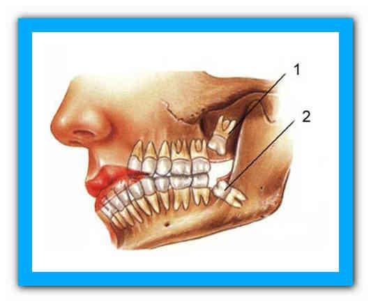 Схема зубного ряда