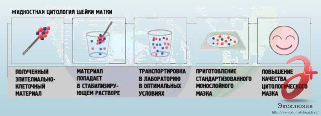 Жидкостная цитология